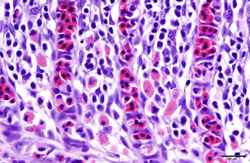 Hematoxylin Gill 1